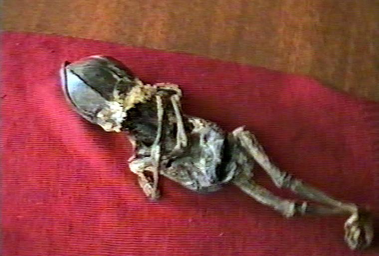 Алешенька. Кыштымский карлик