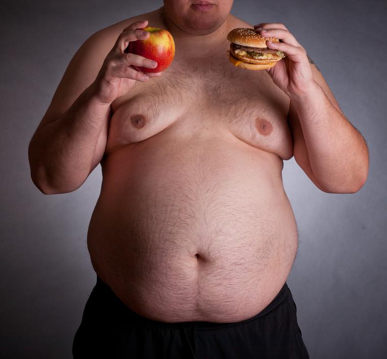 ожирение фото мужчин пожалуй