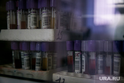 Открытие СПИД-центра. Москва, лаборатория, пробирки, спид-центр, вич, анализ крови, врачи, медперсонал, медицина, спид-тест