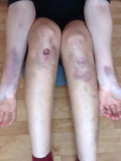Красивые ноги в синяках фото