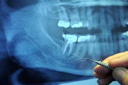 Открытая лицензия от 25.08.2015. Зубы укусы клыки, стоматология, зубы, рентген