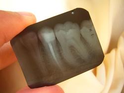 Открытая лицензия от 25.08.2015. Зубы укусы клыки, зубы, рентген