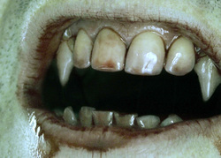 Открытая лицензия от 25.08.2015. Зубы укусы клыки, зубы, укус, клыки