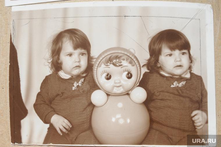 Сиамские близнецы необр, фото из семейного альбома