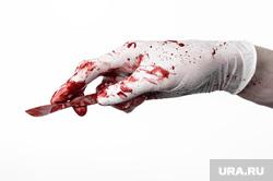 Эрдоган Реджеп, сыры, врач убийца, продуктовая корзина , врач убийца, скальпель, медицинские перчатки