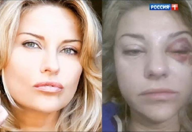 Екатерина Архарова тоже жаловалась на побои со стороны Марата Башарова