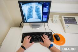 Клипарт. Ноябрьск, экран, рентген, снимок, рак, грудная клетка, компьютер, руки врача