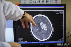 В России изобрели новый способ диагностики рака