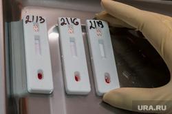 Тест на ВИЧ членов правительства Курганской обл. Курган, диагностика, кровь на анализ, тест на вич, медицинский анализ
