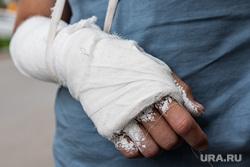 Сеть магазинов разливных напитков «Пивлавка». Екатеринбург, травма, гипс, рука в гипсе, перелом руки, сломанная рука, повреждение