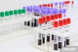 Сдача крови. Екатеринбург, пробирка, кровь на анализ, проверка здоровья, лаборатория