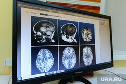 Пресс-тур на территорию медгородка, открытие новой поликлиники, вручение автомобилей скорой медицинской помощи. Челябинск, томография, череп, дисплей, поликлиника, рак, мрт, монитор, мозг, больница, ум