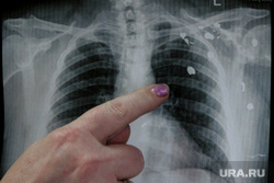 Суд Радко Самац Курган, следы от пуль, самац радко, рентгеновский снимок